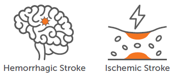 Atlanta Senior Care Stroke | Joy Home Care
